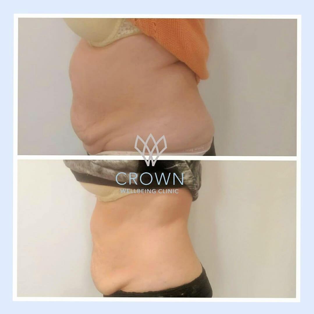 lipo 3d stomach