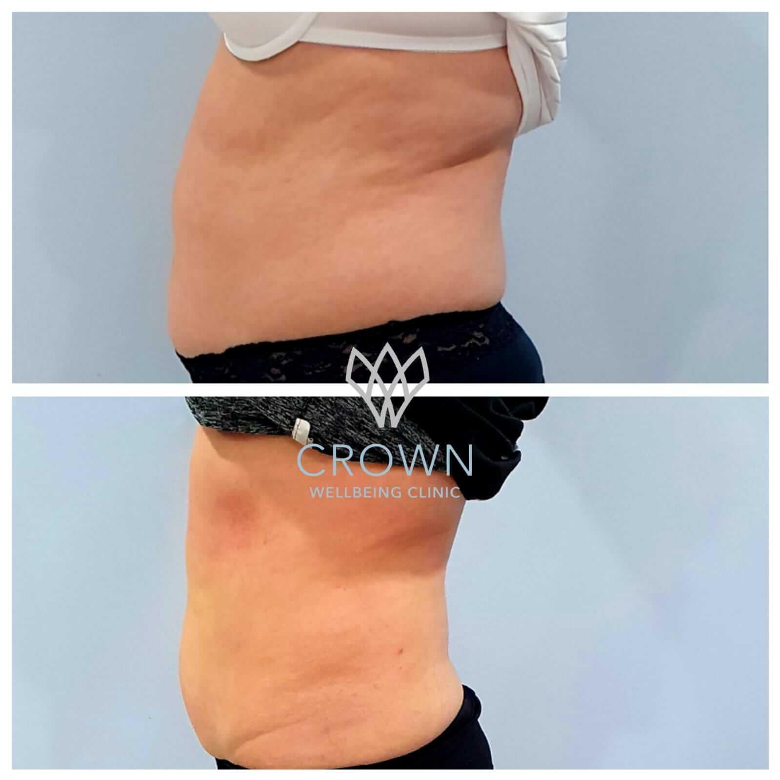 stomach 3d lipo 3
